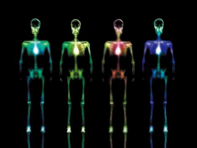 X-Ray xr36.jpg